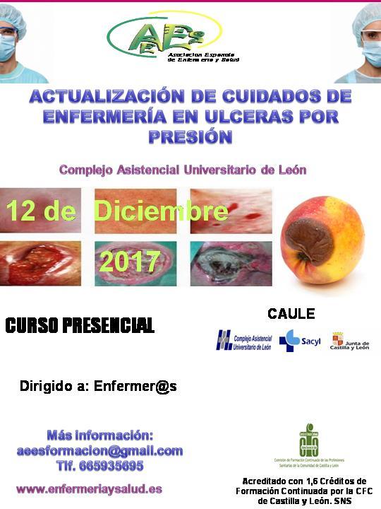 Curso de Actualización de Cuidados de Enfermería en Úlceras por Presión (U. P. P.) (3ª EDICIÓN)